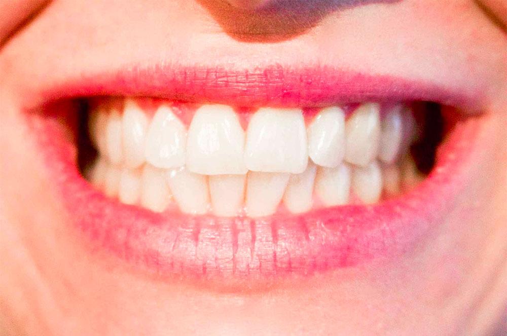 odontoiatria-ortodonzia-carie-test-salivari